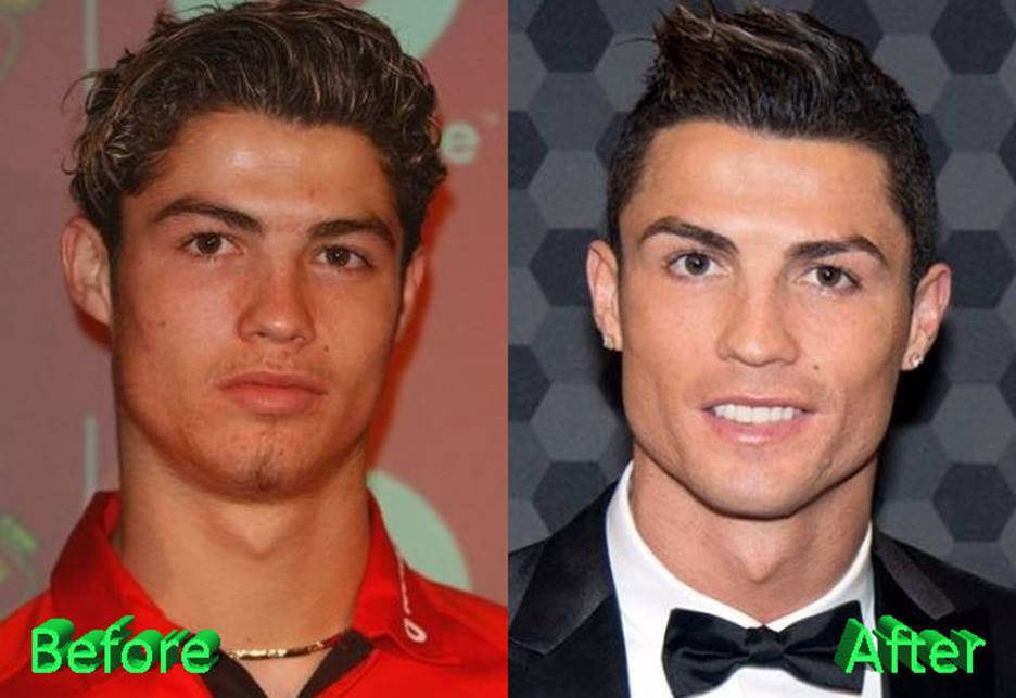 Cristiano Ronaldo Before and After
